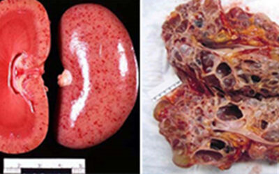 Histopathology Intervention in Renal Disease