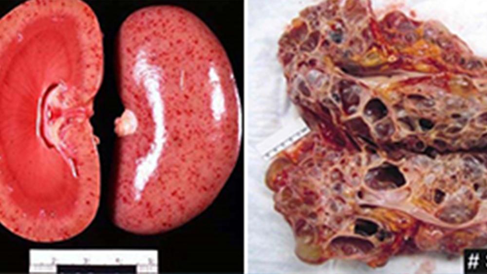 Histopathology Intervention in Renal Disease